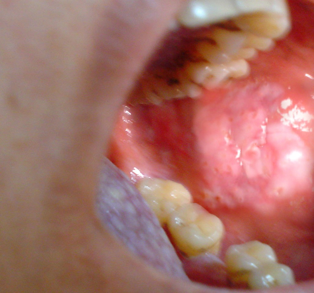 Asesment Of The Management Of Oral Lichen Planus Using