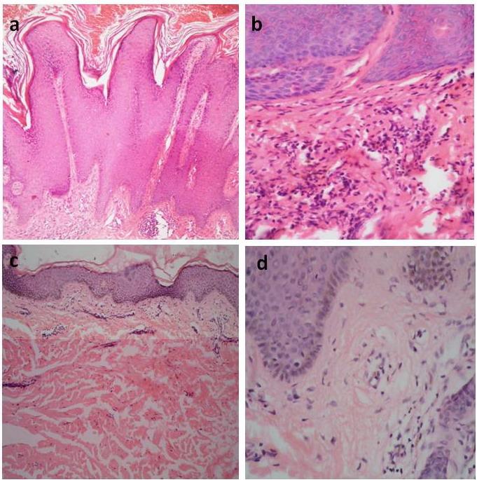 mild epidermal papillomatosis