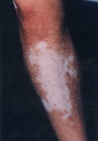 Melanocytes Transplantation Versus Dermabrasion And Split